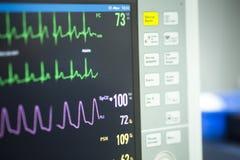 Électrocardiographe dans la chirurgie d'hôpital Photos libres de droits