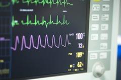 Électrocardiographe dans la chirurgie d'hôpital Photographie stock