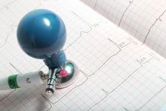 Électrode et plan rapproché de diagramme d'ECG Images stock
