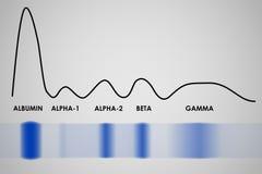 Électrophorèse de protéine de sérum sanguin Photographie stock