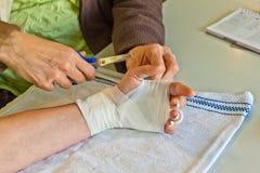 Élimination d'un bandage Image libre de droits