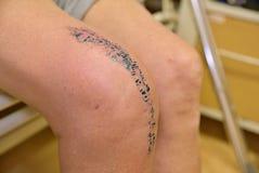 Élimination de l'articulation du genou très douloureuse affectée accidentellement ou arthrite Image stock