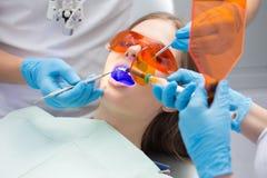 Émetteur à rayonnement ultraviolet remplissant de dent Photos libres de droits