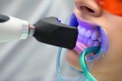 Émetteur à rayonnement ultraviolet remplissant de dent Image libre de droits
