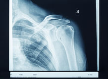 Épaule de rayon X Image stock