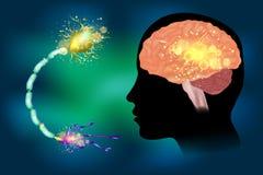 Épilepsie de saisies Anatomie de cerveau illustration libre de droits