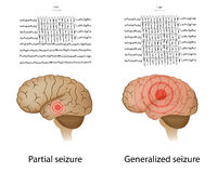 Épilepsie partielle et généralisée illustration de vecteur