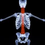 Épine de rayon X Photos libres de droits