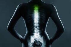 Épine humaine dans le rayon X, sur le fond gris images libres de droits