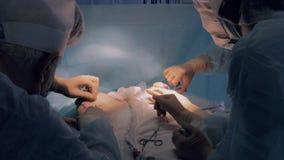 Équipe chirurgicale accomplissant l'opération banque de vidéos