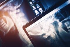 Équipement de balayage de rayon X photos stock
