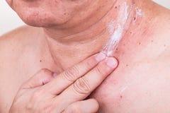 Équipez appliquer la crème antibiotique sur la blessure à partir de la taupe enlevée photo libre de droits