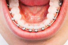 Équipez l'os de mâchoire inférieure du ` s avec des bagues dentaires sur des dents Photo libre de droits