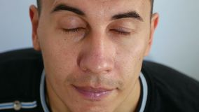 Équipez la peau de problème de personne de dermatite, l'acné et la maladie de la peau en sueur de visage banque de vidéos