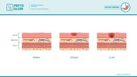 Érosion d'estomac et ulcère peptique illustration de vecteur