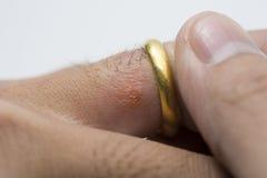 Éruption allergique sur le doigt images stock