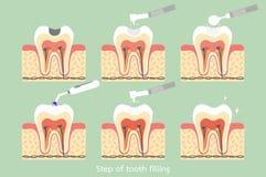 Étape de carie au remplissage d'amalgame de dent avec les outils dentaires illustration stock