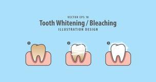 Étape du Blanchir-blanchiment simple de dent et de l'illustrat humain de gomme illustration stock