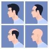 Étapes de la calvitie masculine de modèle Perte des cheveux Alopécie Photos stock