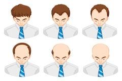 Étapes de la perte des cheveux chez l'homme illustration libre de droits