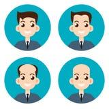 Étapes de la perte des cheveux Illustration de vecteur Photo stock
