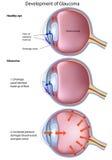 Étapes du glaucome Image stock