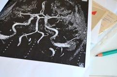 Étude du cerveau après une course - neurone images libres de droits