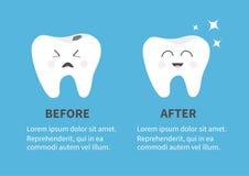 Ícone de sorriso saudável do dente Estrela de brilho Dentes doentes maus de grito com cáries Antes após o molde de Infographic co Imagem de Stock