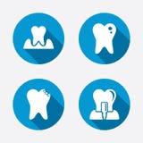 Ícones dos cuidados dentários Dente e implante da cárie Foto de Stock Royalty Free