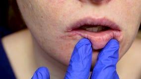 Έρπης στα χείλια: μια γυναίκα με ένα κρύο και τον ιό έρπη εξετάζεται από έναν δερματολόγο και έναν ειδικό μολυσματικών ασθενειών απόθεμα βίντεο