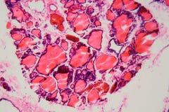Ανθρώπινος θυροειδής αδένας με goiter που προκαλείται από την ανεπάρκεια του ιωδίου κάτω από ένα μικροσκόπιο στοκ εικόνες