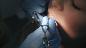 Εγκατάσταση και καθορισμός των στηριγμάτων μετάλλων στην κινηματογράφηση σε πρώτο πλάνο κοριτσιών εφήβων δοντιών απόθεμα βίντεο