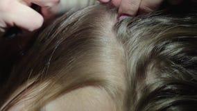 Επεξεργασία του επικεφαλής pediculosis σε ένα παιδί, αφαίρεση των ψειρών και των ψειρών στην τρίχα του κοριτσιού απόθεμα βίντεο