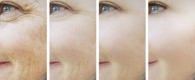 Η γυναίκα ζαρώνει πριν και μετά από τις διαδικασίες κολάζ αναγέννησης ρετουσαρίσματος στοκ φωτογραφία με δικαίωμα ελεύθερης χρήσης