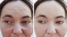 Θηλυκές ρυτίδες πριν και μετά από τις διαδικασίες διορθώσεων στοκ εικόνες με δικαίωμα ελεύθερης χρήσης