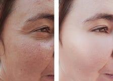 Θηλυκές ρυτίδες πριν μετά από να ενυδατώσει τη διόρθωση το procedureremoval s επίδρασης θεραπείας στοκ εικόνα