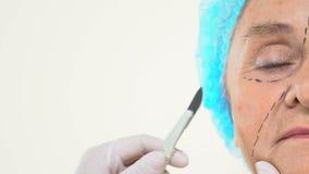 Ιατρικό παλαιό θηλυκό πρόσωπο χειρουργικών νυστεριών χειρούργων εκμετάλλευσης εργαζομένων, λειτουργία ανύψωσης δερμάτων απόθεμα βίντεο