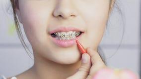 Καθαρισμός κοριτσιών εφήβων και δόντια βουρτσίσματος με τα σαφή στηρίγματα μετάλλων απόθεμα βίντεο