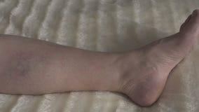 Κιρσώδεις φλέβες και θρομβοφλεβίτιδα στα πόδια μιας γυναίκας, κινηματογράφηση σε πρώτο πλάνο, κυκλοφορία, θρόμβωση απόθεμα βίντεο