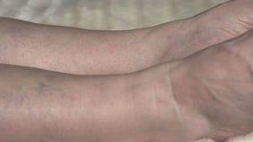 Κιρσώδεις φλέβες και θρομβοφλεβίτιδα στα πόδια μιας γυναίκας, κινηματογράφηση σε πρώτο πλάνο, κυκλοφορία, αγγειακή απόθεμα βίντεο