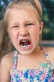 Μικρό κορίτσι με orthodontics τη συσκευή και τα στριμμένα δόντια Wobbly δόντι στοκ εικόνα