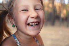 Μικρό κορίτσι με orthodontics τη συσκευή και το wobbly δόντι στοκ φωτογραφίες με δικαίωμα ελεύθερης χρήσης