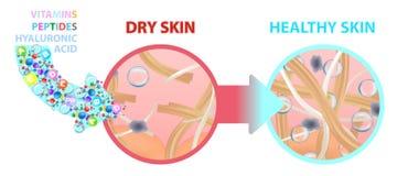 Ξηρό δέρμα που εμπλουτίζεται με τις βιταμίνες, διατροφή υγιές δέρμα επίσης corel σύρετε το διάνυσμα απεικόνισης διανυσματική απεικόνιση