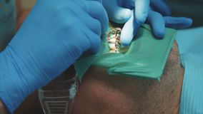 Οδοντίατρος που μεταχειρίζεται έναν υπομονετικό χρησιμοποιώντας εγκιβωτισμό 4K απόθεμα βίντεο