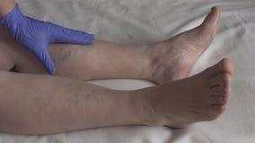 Ο γιατρός εξετάζει τα πόδια ενός θηλυκού ασθενή ο οποίος κιρσώδεις φλέβες και θρομβοφλεβίτιδα, σε αργή κίνηση απόθεμα βίντεο
