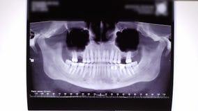 Ταινία ακτίνας X των δοντιών και του σαγονιού απόθεμα βίντεο
