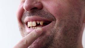 Το άτομο ανοίγει το στόμα και τα σημεία του από το δάχτυλο στην κακή σπασμένη κινηματογράφηση σε πρώτο πλάνο δοντιών του στο άσπρ απόθεμα βίντεο