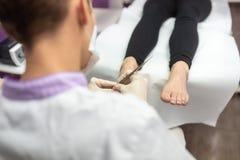 Πέρα από την άποψη ώμων του podiatrist που αφαιρεί την επιδερμίδα στοκ φωτογραφία με δικαίωμα ελεύθερης χρήσης