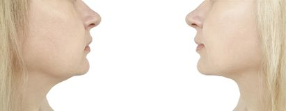 πηγούνι γυναικών, πριν και μετά από τη διαδικασία στοκ φωτογραφίες
