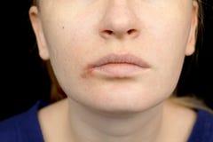 Герпес на губах: женщина с холодом и вирусом герпеса расмотрена специалистом по дерматолога и инфекционного заболевания стоковые изображения rf
